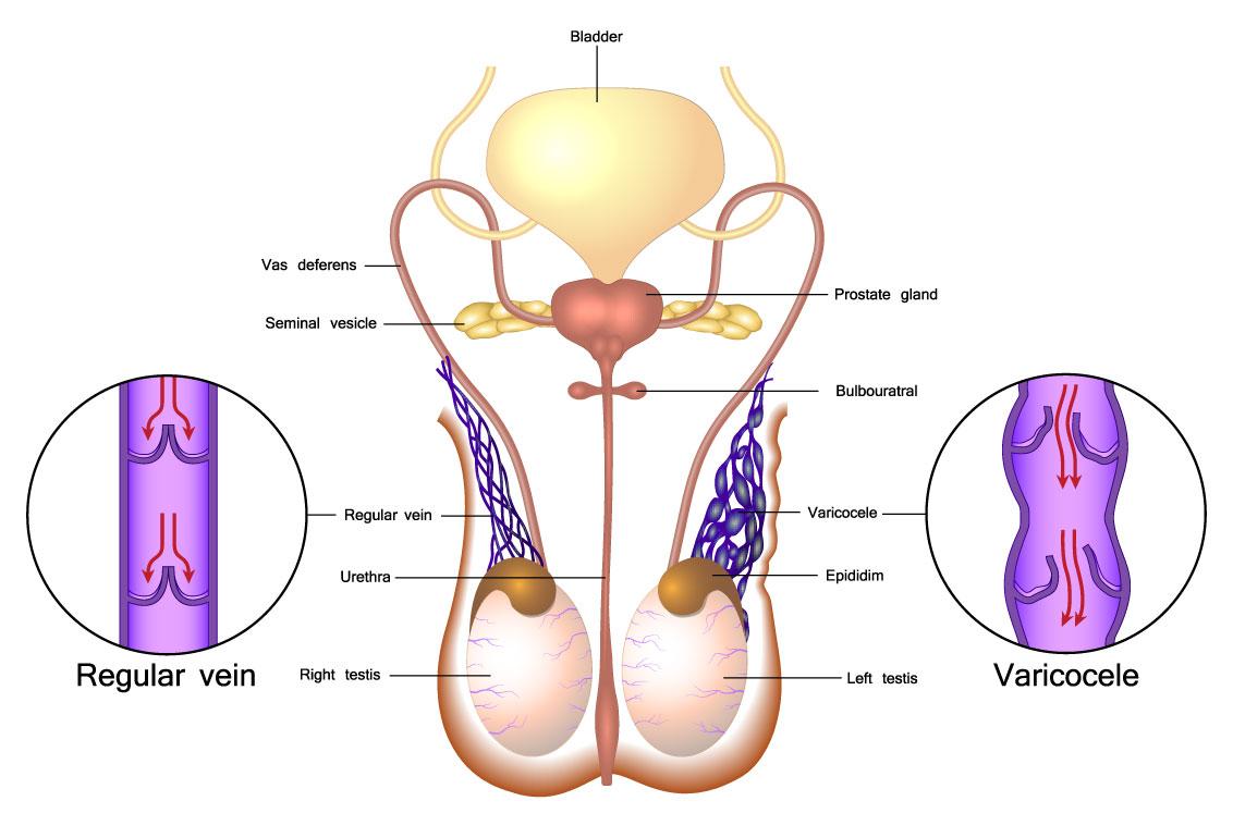 Giãn tĩnh mạch thừng tinh khiến chất lượng tinh trùng giảm, khó thụ thai