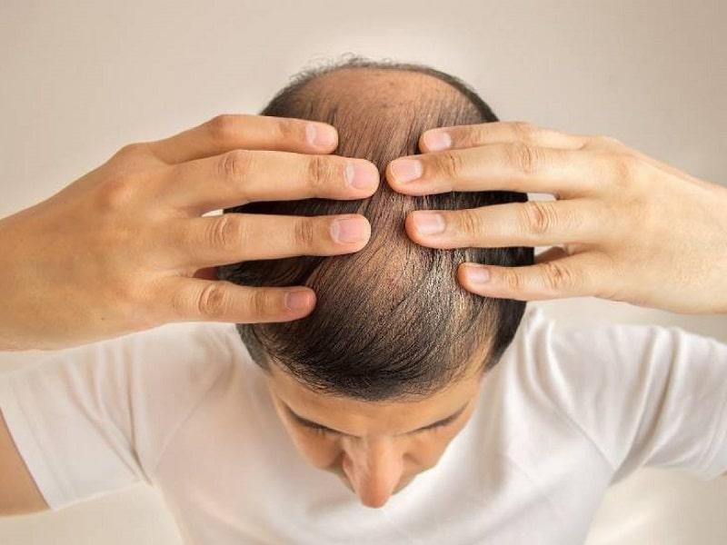Cách điều trị hói đầu của đàn ông