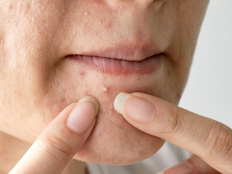 Nặn mụn không giúp điều trị triệt để mà chỉ làm để lại sẹo khó lành