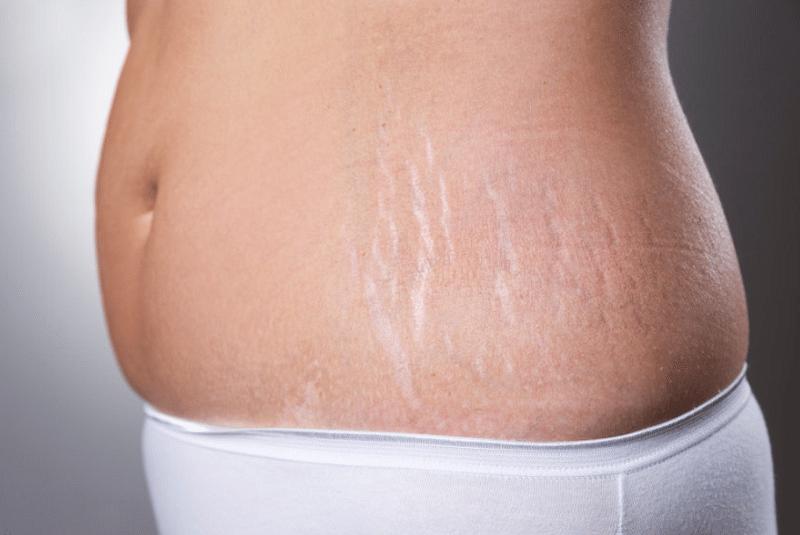 Rạn da thường gặp ở những người tăng cân nhanh