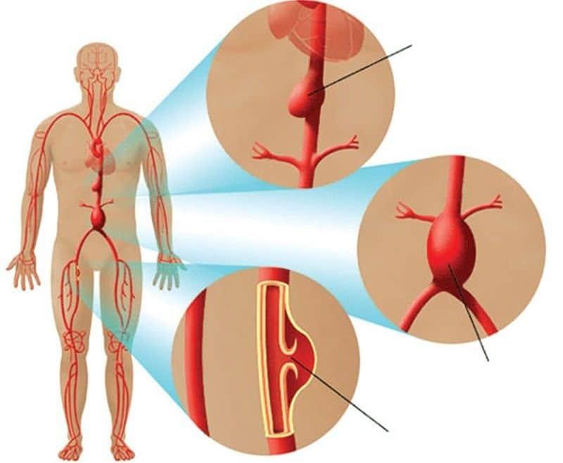 Bóc tách động mạch là căn bệnh dễ gặp ở người trong độ tuổi từ 40 đến 70