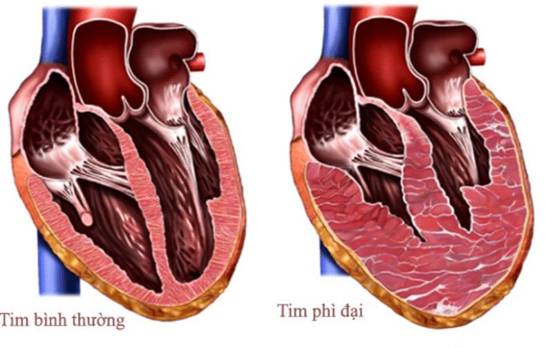 Cơ tim phì đại là nguyên nhân phổ biến dễ gây ra đột tử ở nam giới trẻ