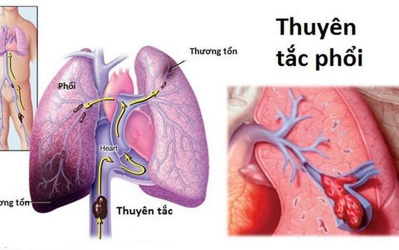 Những dấu hiệu của bệnh thuyên tắc động mạch phổi thường gặp đó là đau và sưng ở vùng cánh tay, chân trong vòng 1-2 ngày không khỏi